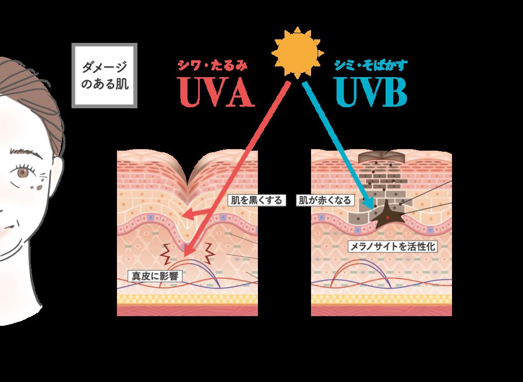 たるみの原因 紫外線